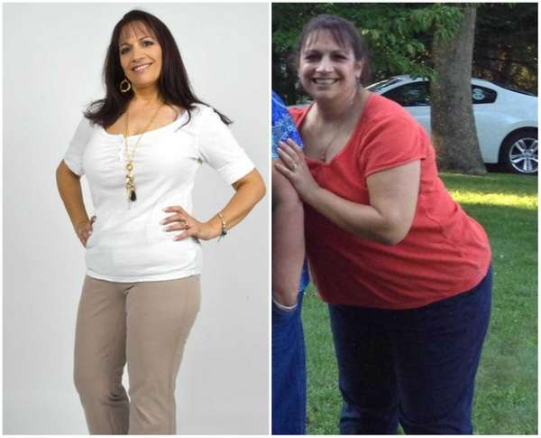 Luana Dunn, of Medford, lost 63 pounds after