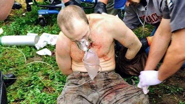 Convicted murderer David Sweat receives medical treatment at
