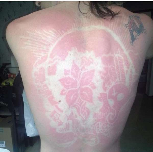 The #SunburnArt social media trend is just as