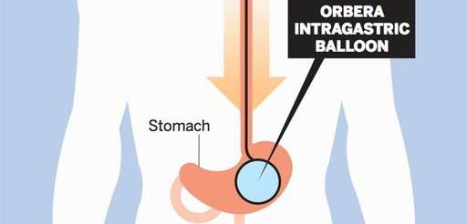 A diagram shows how intragastric balloons are inserted