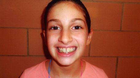 Kidsday reporter Sarah Fleishaker says braces have pros