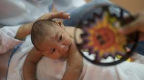 A three-month-old undergoes physical therapy in Recife, Brazil,