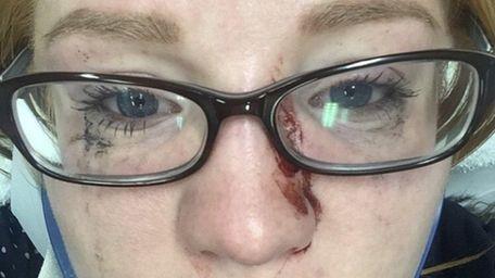 Erin Reilly, 27, of Massapequa Park, recovers at