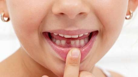 Scientists say that banking baby teeth might help