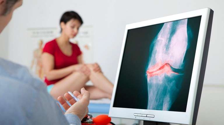 Surgery is not typically recommended for young osteoarthritis