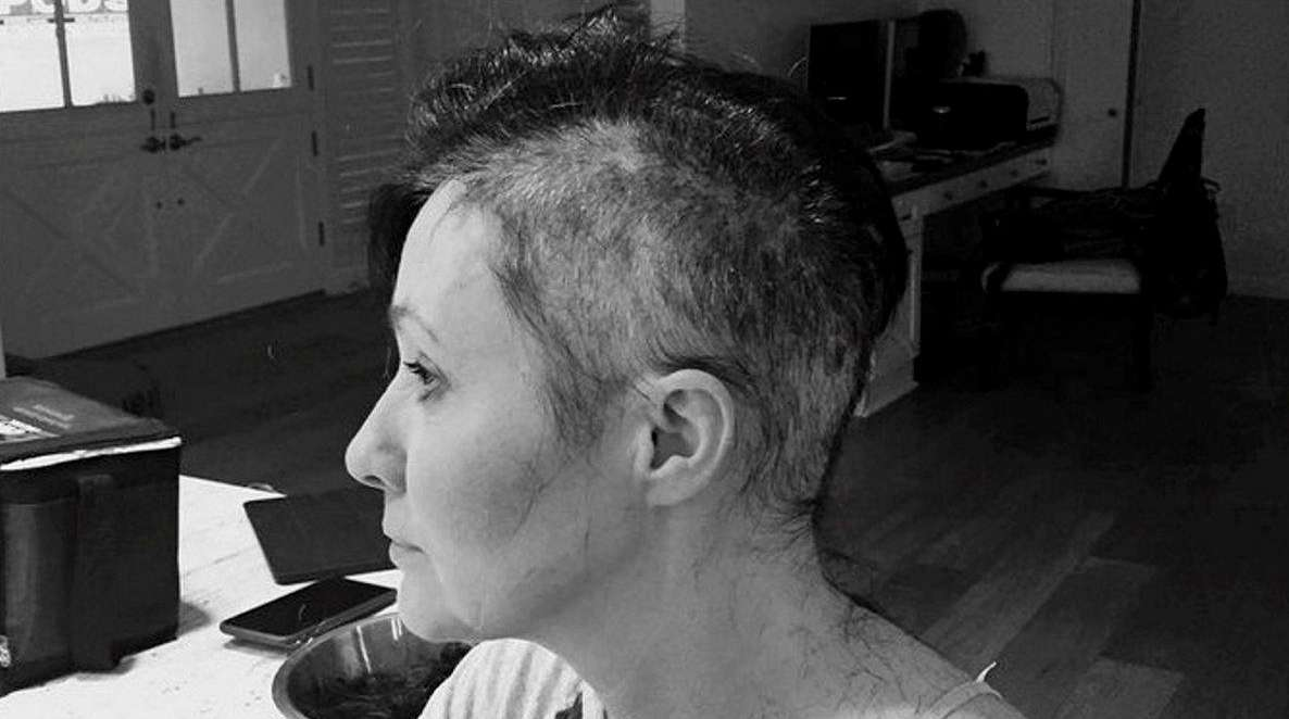 Shannen Doherty released photos of her head being