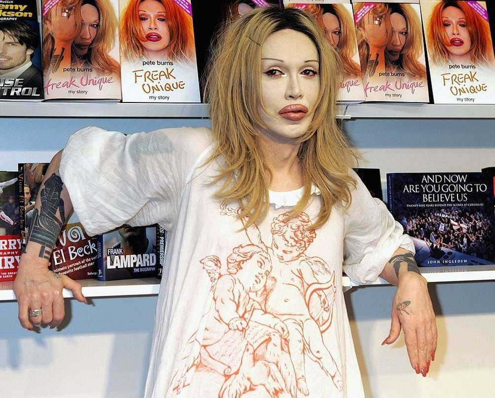 Pete Burns (Aug. 5, 1959 -- Oct. 23,