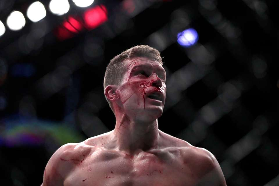 Stephen Thompson is bloodied while fighting with Tyron