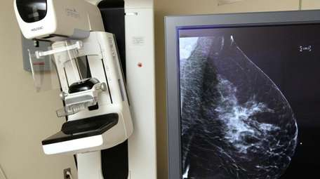 The Hologic Selenia Dimension digital mammography machine at