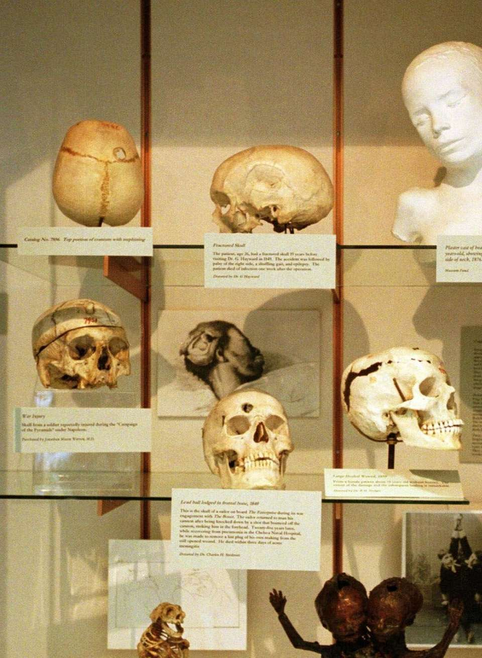 A collection of deformed human skulls and the