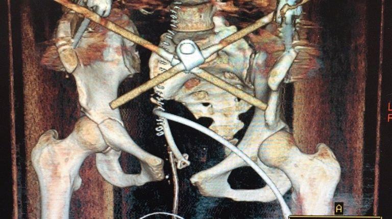 White sustained a shattered pelvis, broken leg, ruptured