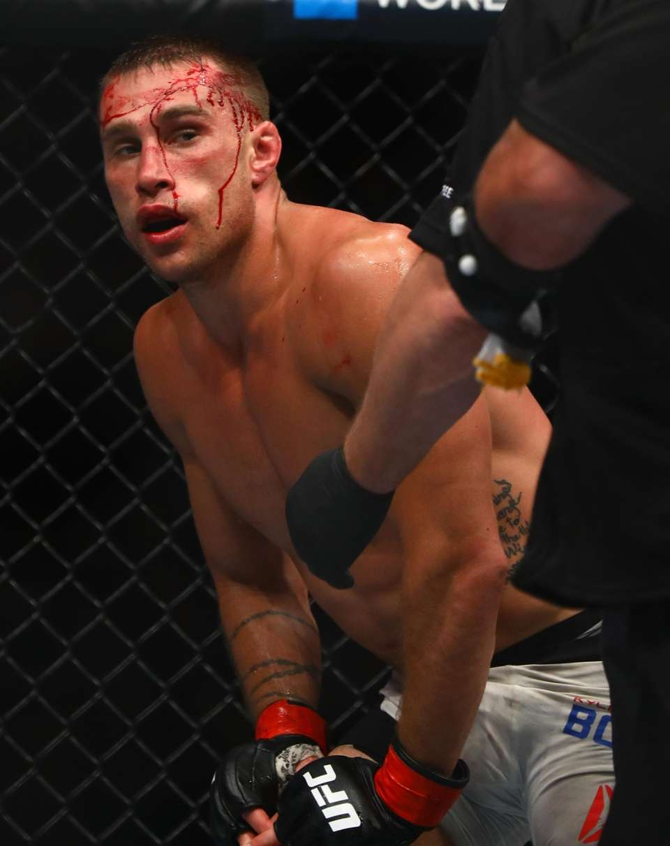 Featherweight Kyle Bochniak after a fight with Jeremy
