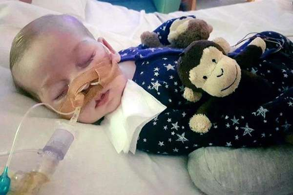 This is an undated photo of sick baby