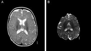 MRI images of normal human brain vs. microcephaly
