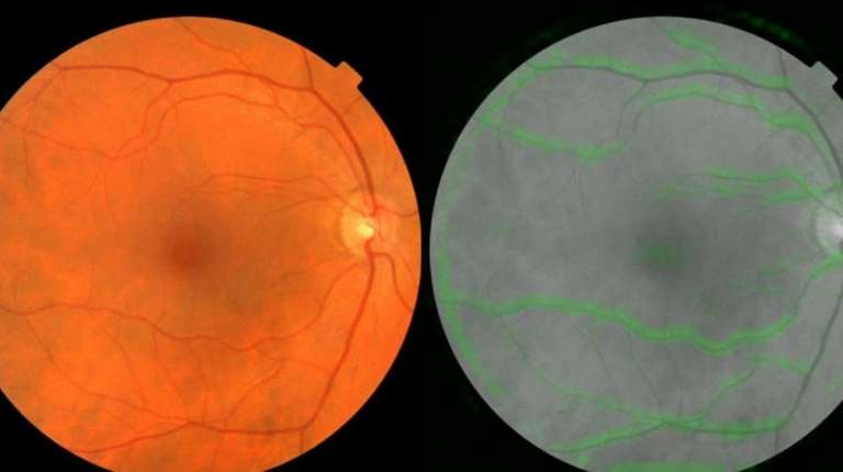 Google AI Predicts Heart Disease and Stroke From Retinal Images