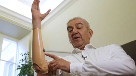 Marco Zambelli shows his prosthetic hand during an