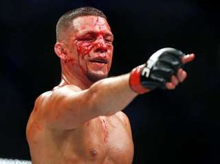 Nate Diaz points at Conor McGregor during their