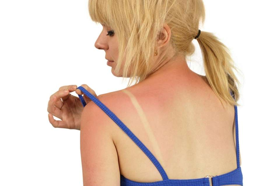 blond female with a bad sunburn on her