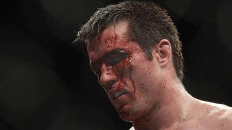 Chael Sonnen walks to his corner after the