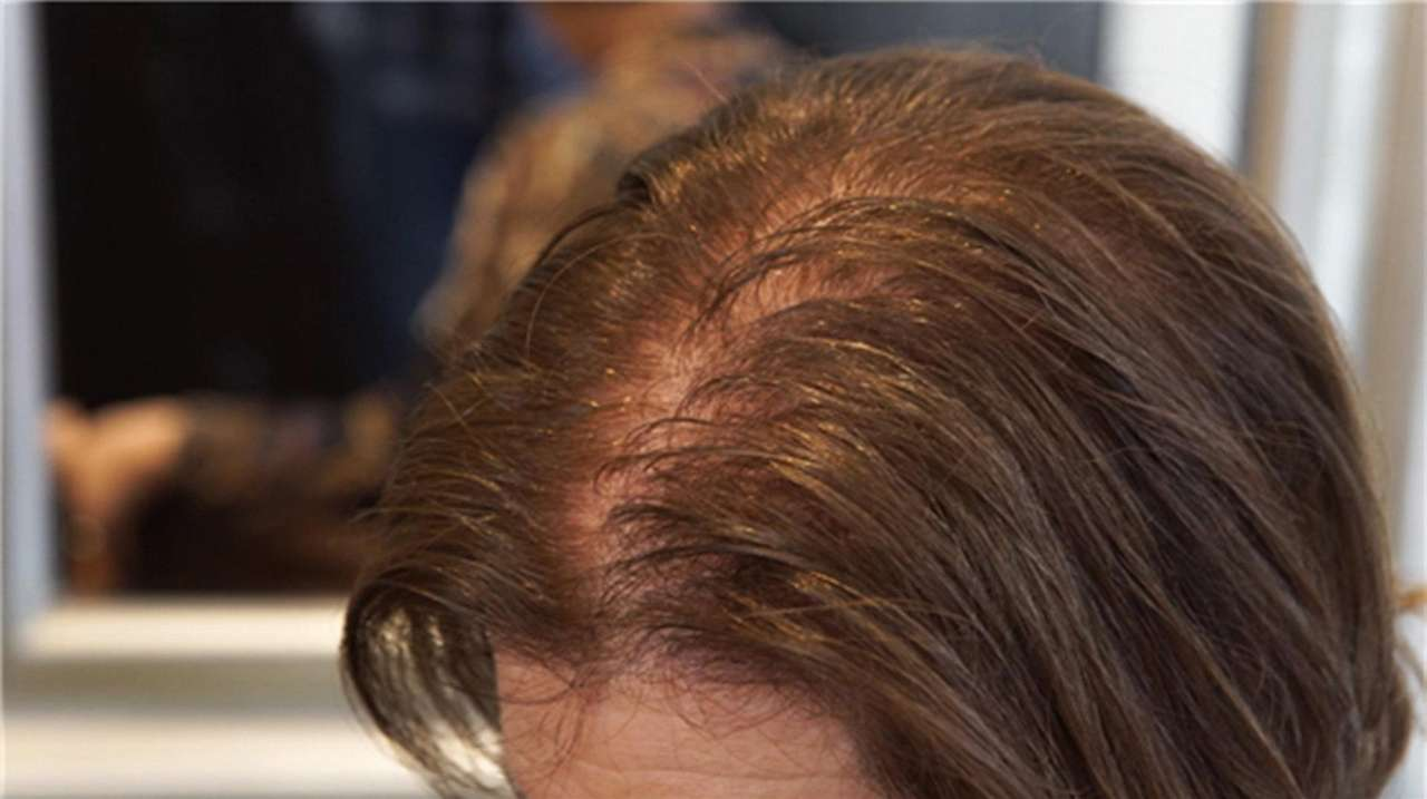 best shoo for thinning hair for women good to know which treatments work for women navigating