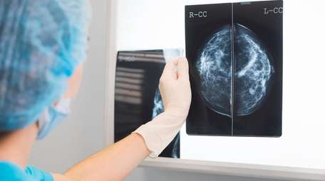A mammogram seen in front of an X-ray
