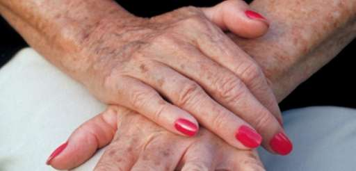 Spotted, Aging Process, Human Skin, Human Hand, Women,