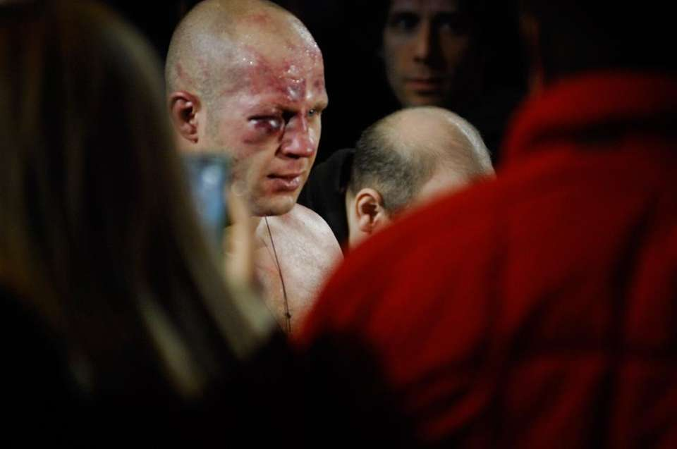 Fedor Emelianenko's right eye was so swollen, the