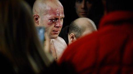 Fedor Emelianenko's right eye was so swollen, the