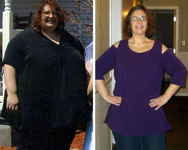 Theresa Devlin of East Rockaway lost 313 pounds