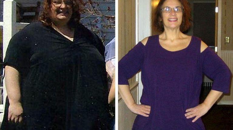 Theresa Devlin of East Rockaway lost 313 pounds