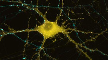 A healthy neuron boasts multiple connections via fibrous