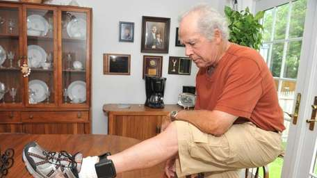 Joe Donnelly shows the alcohol monitoring ankle bracelet