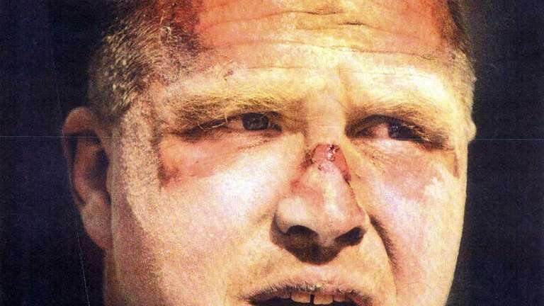 Photo showing facial injuries NYPD office Darrin Dawber