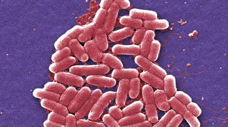 What is E.coli and the first signs you have it?