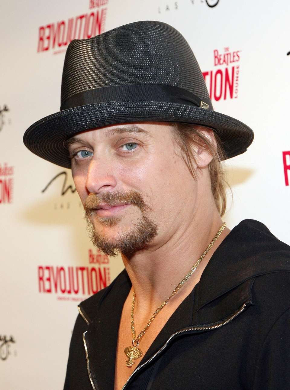 Stage name: Kid Rock Birth name: Robert James
