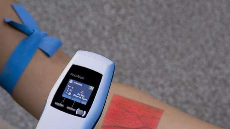 AccuVein Inc.'s infrared medical device, above, illuminates blood