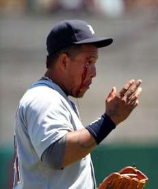 Detroit Tigers' Miguel Cabrera reacts after getting hit