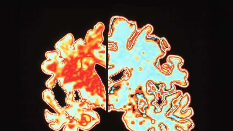 Computer analysis shows brain shrinkage common in Alzheimer's