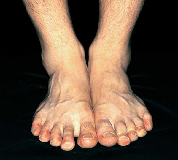 The Institute for Preventive Foot Health estimates that