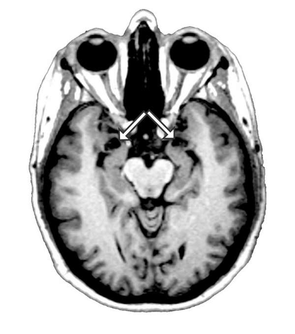 An undated image of a brain scan provided