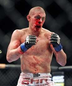 Joe Lauzon is bloodied during his UFC155 lightweight
