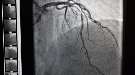 A high contrast image of the left coronary