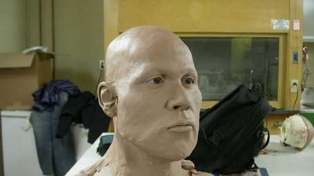 The partially reconstructed skull of a man whose