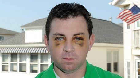 Long Beach Firefighter Brian McNamara, 37, is accused
