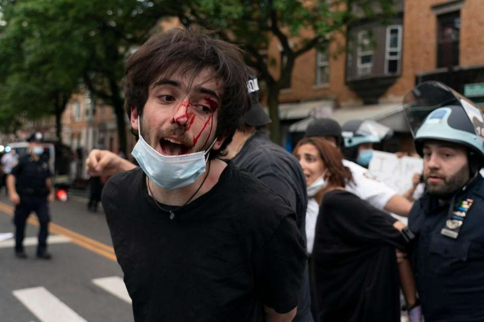 A bloodied protester is arrested as demonstrators demanding
