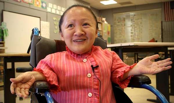 Zhao Chun Li, a disabled woman from China,