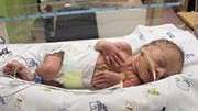 Low birth weight also more likely, researchers found