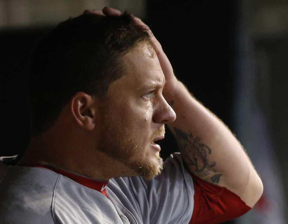 Boston Red Sox's Jake Peavy wipes his faces
