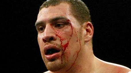 Derric Rossy bleeds from a cut during the