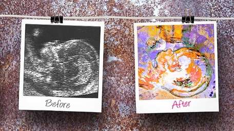 Have your baby-to-be's 2D/3D sonograms made into colorful